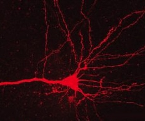 Neurons with light sensitive molecules