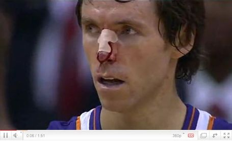 Steve-nash-phoenix-bloody-nose-nba-funny-photos_medium