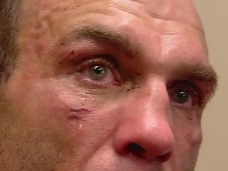 Randy-couture_medium