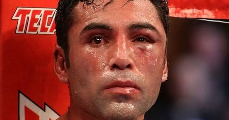 Oscar-de-la-hoya-battered_1590802_medium