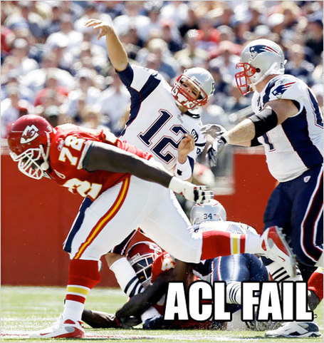 Bradyaclfail_medium