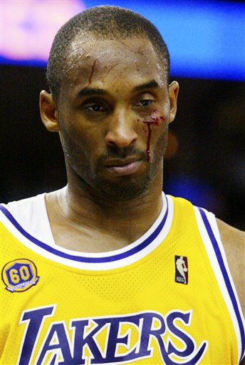 Kobe-bleeding-warriors_medium