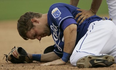 Baseball_injuries_indians_royals_2_5c0e968c-fbba-f946-33f438297b1376ee_medium