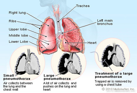 Pneumothorax_medium