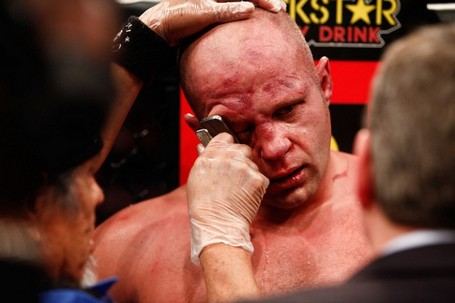 Fedor_emelianenko_eye_2-610x406_medium