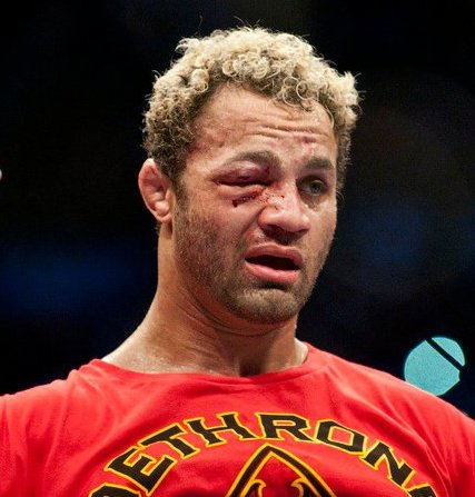 Koscheck_252c_josh__2528swollen_right_eye_courtesy_of_gsp_2527s_left_jab_at_ufc_124_noncloseup_2529_medium