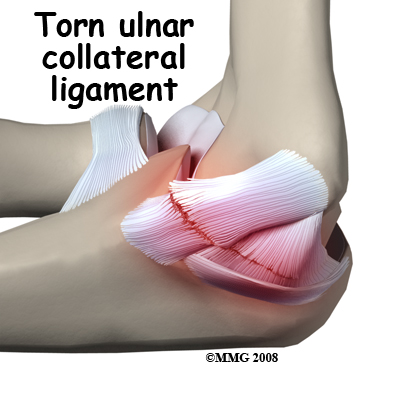 Elbow_ucl_injury_causes01_medium