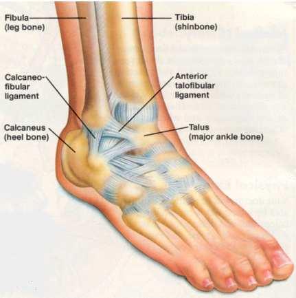 Ankle Ligament Tear