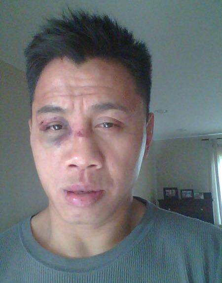 Useful topic Mma fighter broken nose rather grateful
